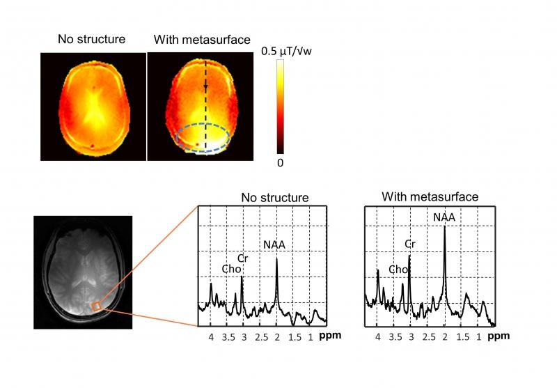 Результаты МРТ с метаповерхностью и без нее