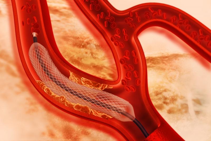 Стентирование коронарных артерий. Источник: shutterstock.com