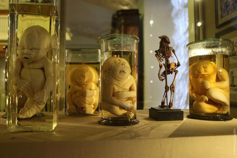 Kunstkamera: Russia's Bizarre First Museum