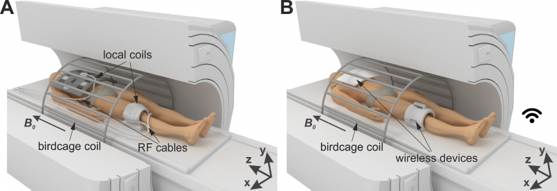 A – Standard procedure of clinical MRI; B – Proposed approach. The illustration is from the article.
