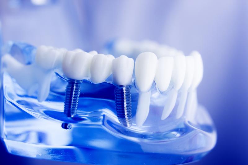 Dental implants. Credit: shutterstock.com