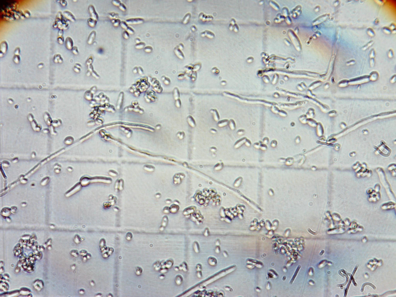 Picture of the Week: Brettanomyces Pseudomycelium