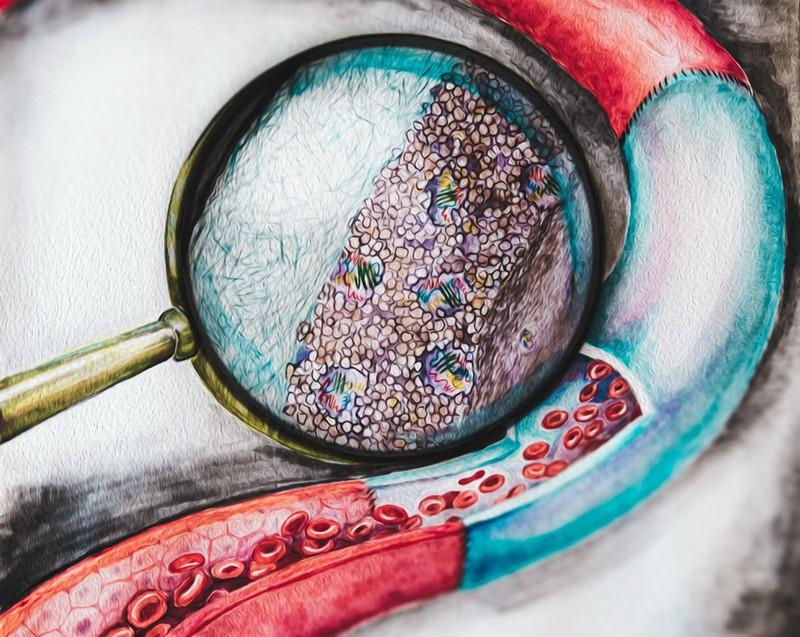 Ученые Университета ИТМО создали покрытие для сосудистых имплантатов, растворяющее тромбы