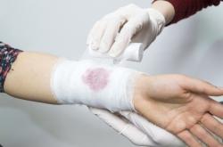 ITMO-Developed Nanoparticle Technology Helps Stop Internal Bleeding